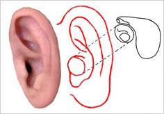 中耳炎の手術